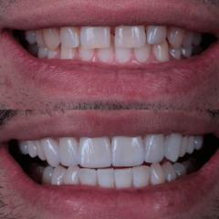 Виниры зубы