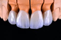 накладки на зуб