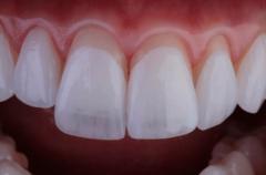 Белоснежный зуб