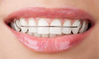 Пластинка для выравнивания зубов.